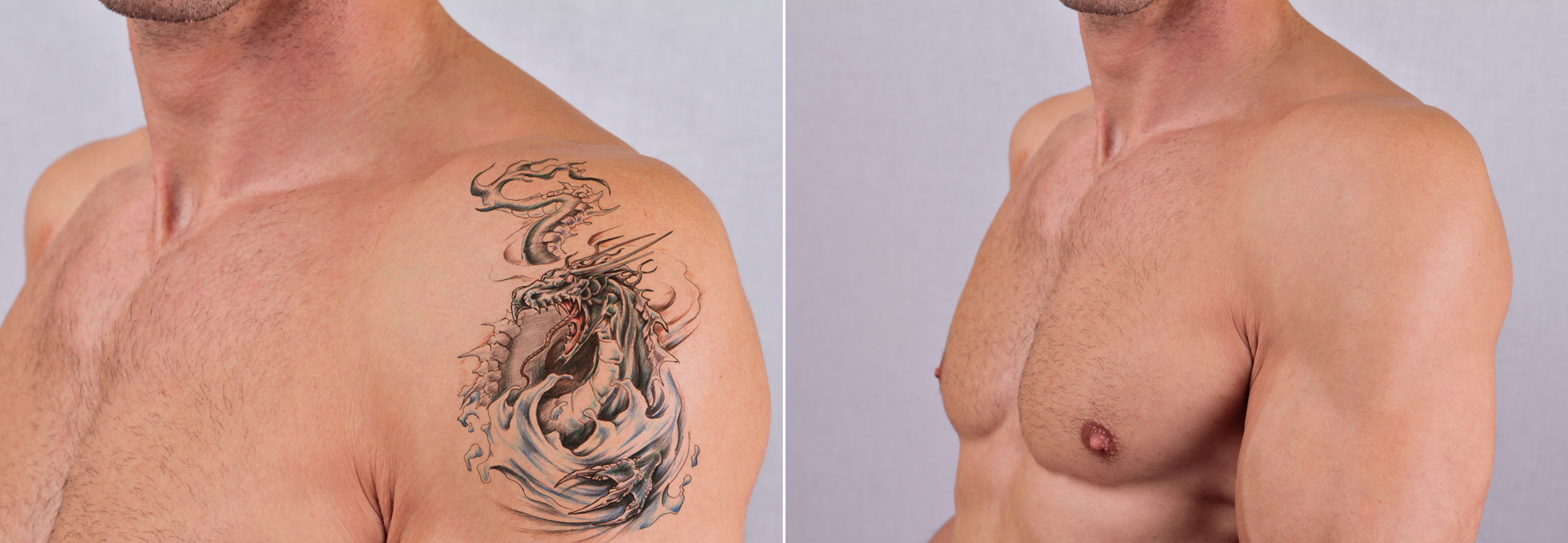 Laser Tattoo Removal Treatment at Affordable Prices in Nairobi Kenya