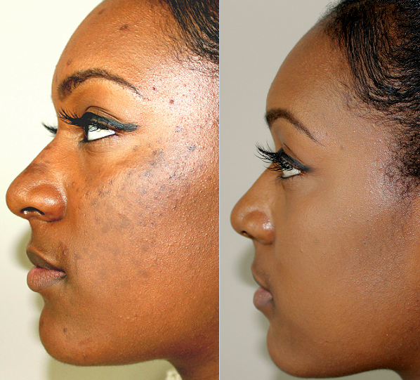 Affordable Hyperpigmentation Treatment in Nairobi, Kenya